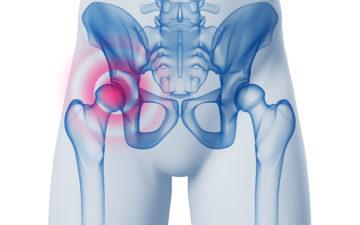 Frattura del collo del femore nell'anziano. Una soluzione mini invasiva