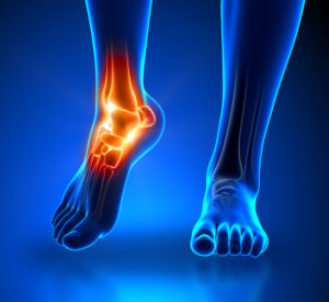 Ankle pain - detail