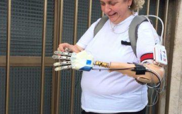 Prima mano bionica: test di sei mesi su donna italiana