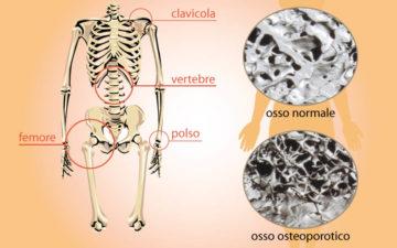 Osteoporosi: un brevetto attende aziende per la messa in commercio