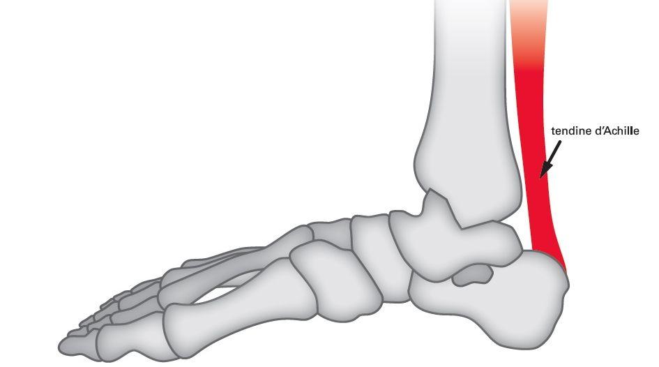 La lesione del tendine d'Achille