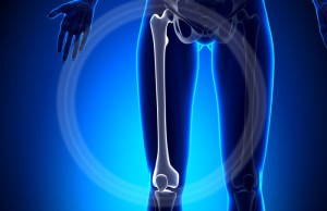 Female Femur - Anatomy Bones