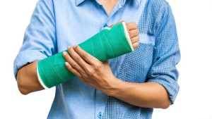 Green cast on an arm of a women isolated on white background