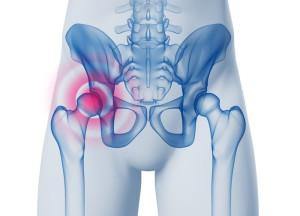 Schmerzen in der Hüfte - Hüftchirurgie - 3D Grafik