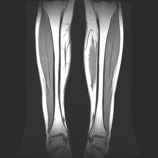 Il lato oscuro dell'edema osseo