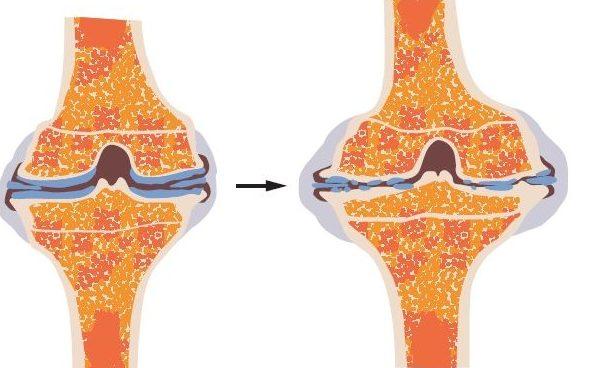 Osteoartrosi, una malattia di genere