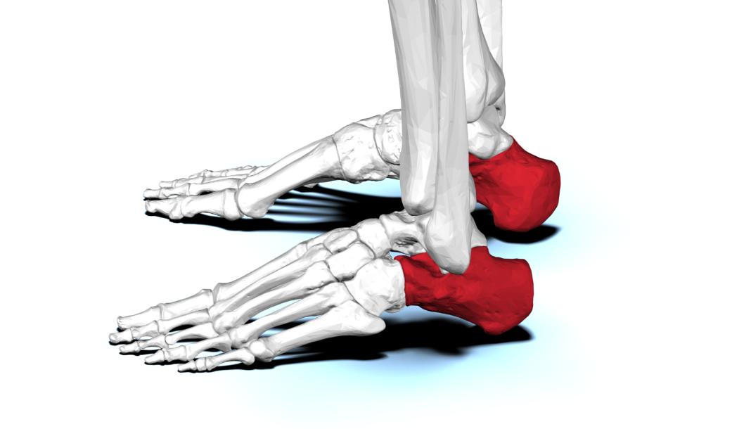Chirurgia del piede: master di II livello a Napoli