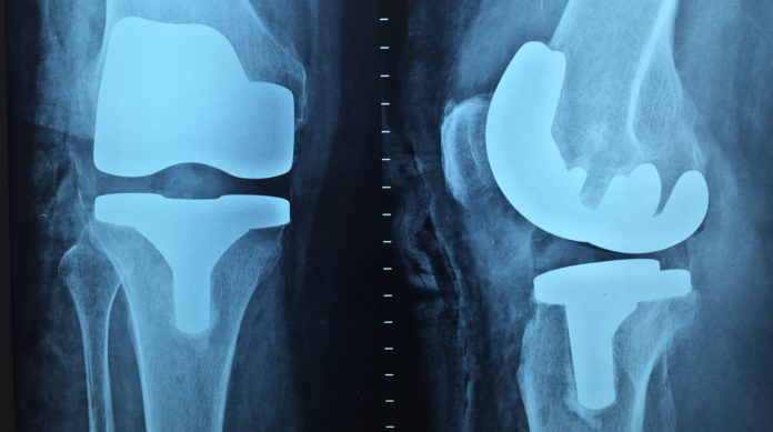 Protesi totale di ginocchio: efficacia della crioterapia
