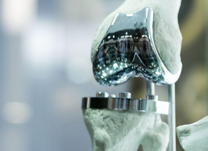 Protesi completa di ginocchio e lesioni ai reni
